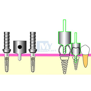 MD Guide – Implantology Filay Dent